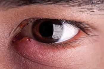 воспаление глаза как вылечить в домашних условиях